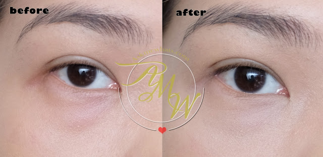 before and after photo of dear Klairs Creamy & Natural Fit Concealer Review by Nikki tiu of askmewhats.com