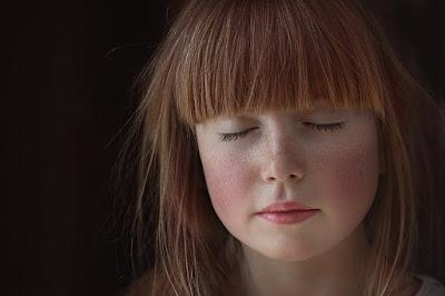 Penyakit Lupus: Obat, Gejala, Penyebab, Pengobatan, dll