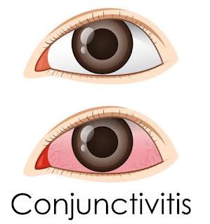 pink eyes symptoms