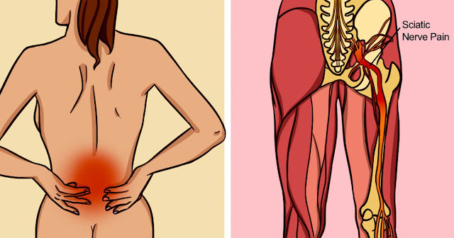 Know How to Treat Sciatic Pain (Lower back extends to Back of Each Leg Pain)
