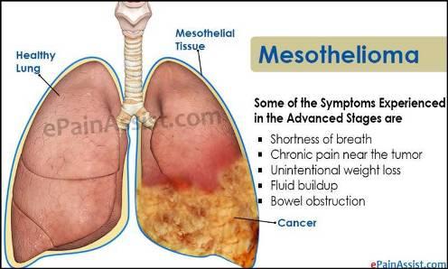 Penyakit kanker paru-paru Mesothelioma yang berbahaya karena asbestos