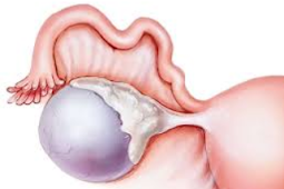 Septated cyst: Understanding And Treating this kind Of advanced female internal reproductive organ Cyst