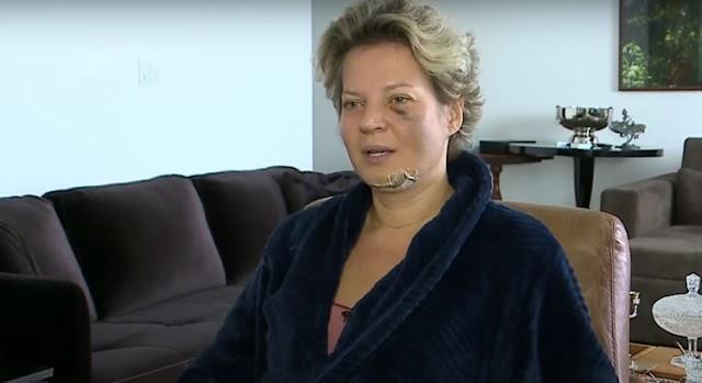 Após acordar ensanguentada e com fraturas, Joice Hasselmann aciona Depol
