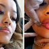 Вот как на самом деле выглядят инъекции ботокса и коррекция носа