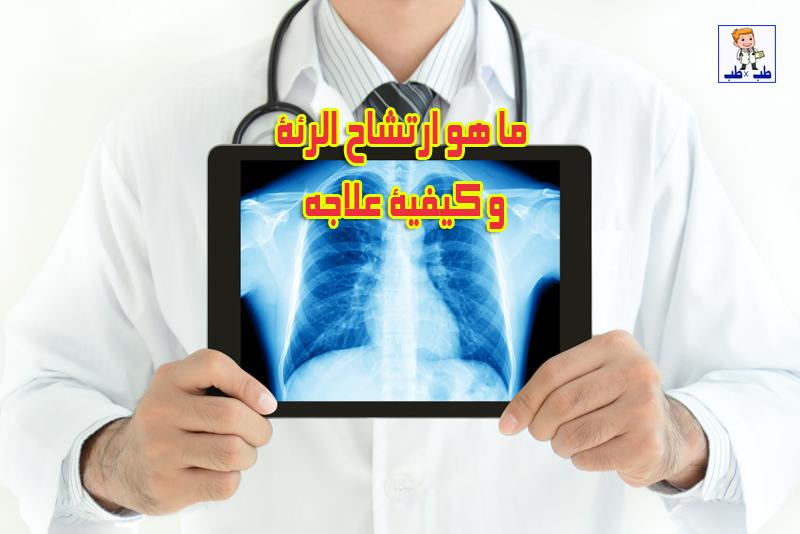 الرئة,التهاب الرئة,اعراض التهاب الرئة,علاج التهاب الرئة,سرطان الرئة,اعراض سرطان الرئة,اسباب التهاب الرئة,احتشاء الرئة,ارتشاح الامعاء,احتشاء في الرئة,امراض الرئة,الالتهاب الرئوي,علاج الالتهاب الرئوي,المية على الرئة,تجمع السوائل في الرئة,مشاكل الرئة,الارتشاح البلوري,سبب تجمع السوائل في الرئة,#الرئة,علاج تجمع السوائل في الرئة,ماء الرئة,ذات الرئة,اعراض تجمع السوائل في الرئة,اعراض الالتهاب الرئوي,خراج الرئة,وذمة الرئة,أمراض الرئة,اعراض سرطان الرئه,الرئه,مياه على الرئة,كيف تنظف الرئة,صديد حول الرئة