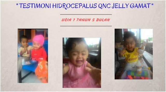 Obat Hidrosefalus Anak Di Apotik