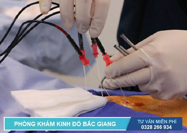 Phương pháp RFA là kỹ thuật điều trị viêm lộ tuyến cổ tử cung hiện đại nhất