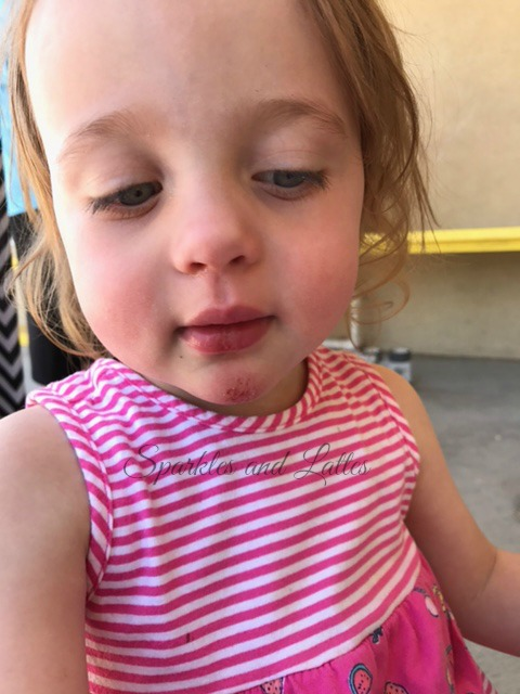 toddler injury from the slide