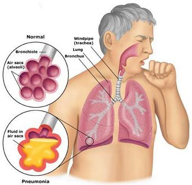 According to a research available at Canadian Medical Association Journal, sleep apnea patients are likely to have more chances of pneumonia as compared to other people, who don't have this syndrome.