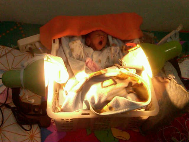 Inkubator Bayi Mendukung Kelangsungan Hidup Bayi