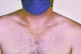 ٹائیفائیڈ بخار کا بہترین رخ ..                                The Best Side of typhoid fever