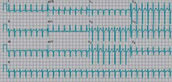AV nodal reentrant tachycardia
