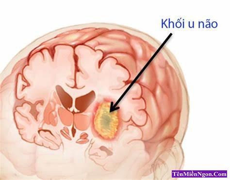 Các giai đoạn của ung thư Não