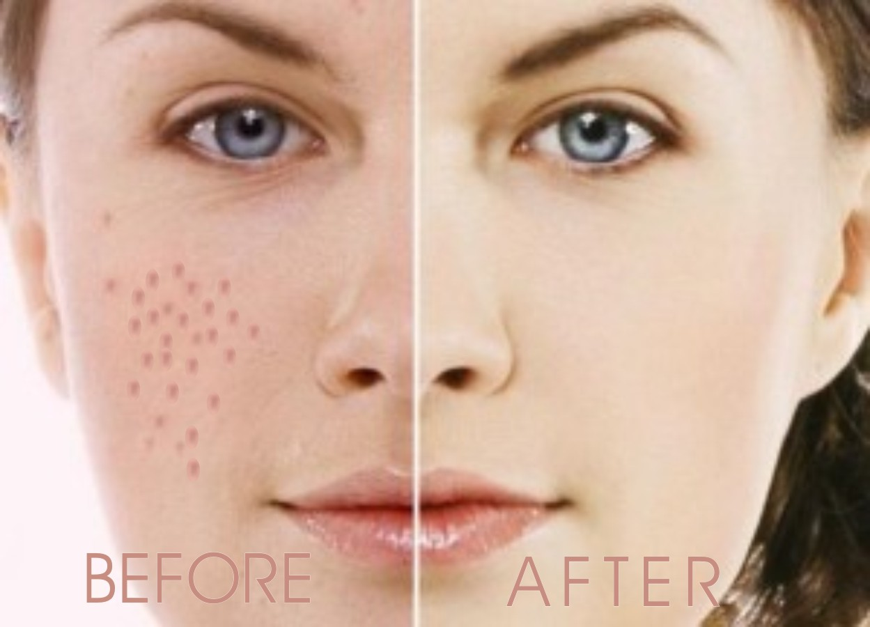 How to remove acne scars naturally and fast traffic from search how to remove acne scars acne that had healed will leave the former black stain on acne furthermore acne scars besides the black will usually occur the ccuart Choice Image
