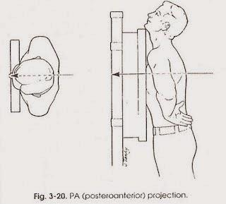Postero-Anterior : sinar dari belakang ke depan