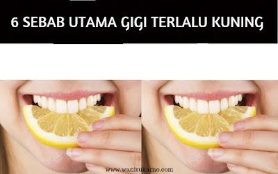 6 sebab utama gigi terlalu kuning
