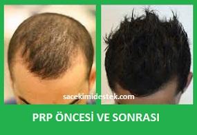 prp saç tedavisi yaptıranlar 13