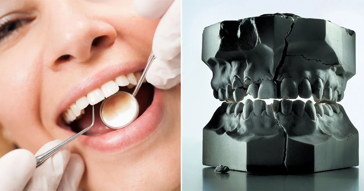 Scientists Create New Product That Repairs Tooth Enamel And May End Cavities Forever