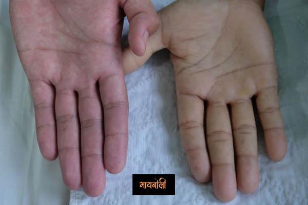 Gomutra Benefits in Marathi रक्तातील हिमोग्लोबिन ची पातळी वाढवते