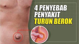 Penyakit Hernia
