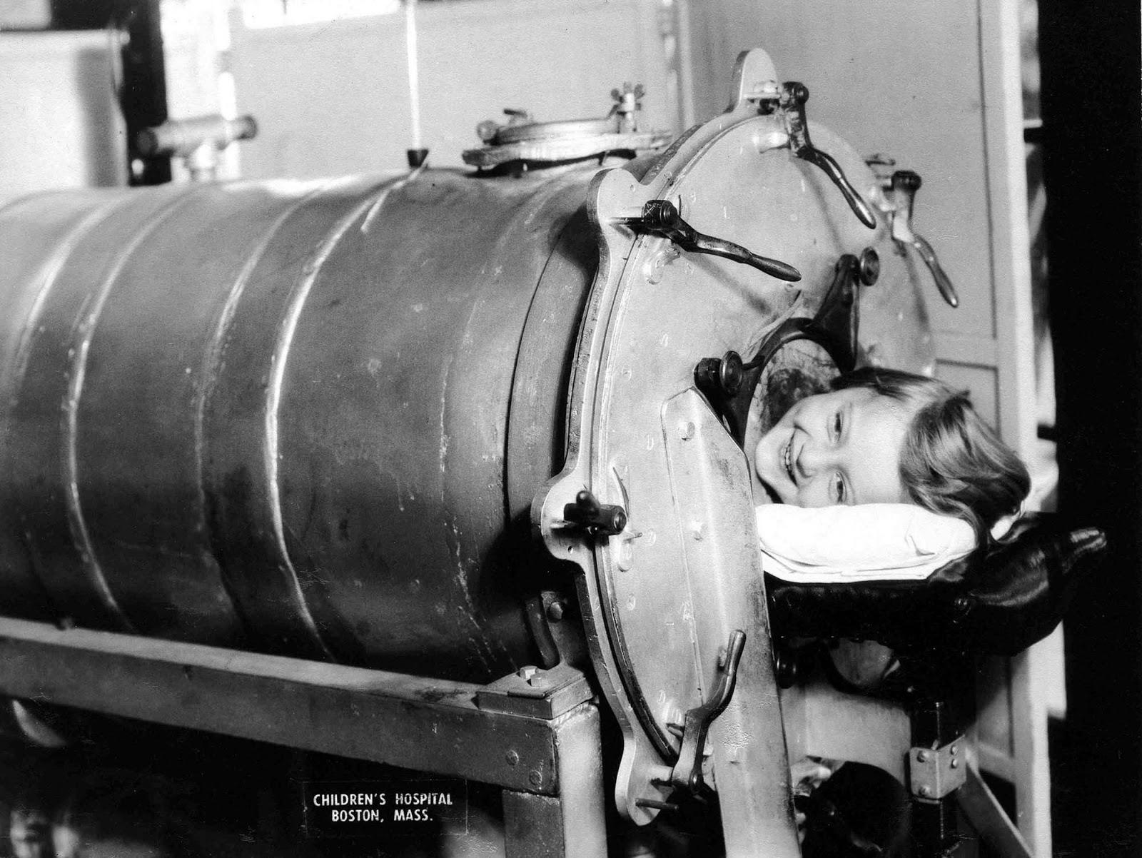 La poliomielitis (poliomielitis) afecta principalmente a niños menores de 5 años.