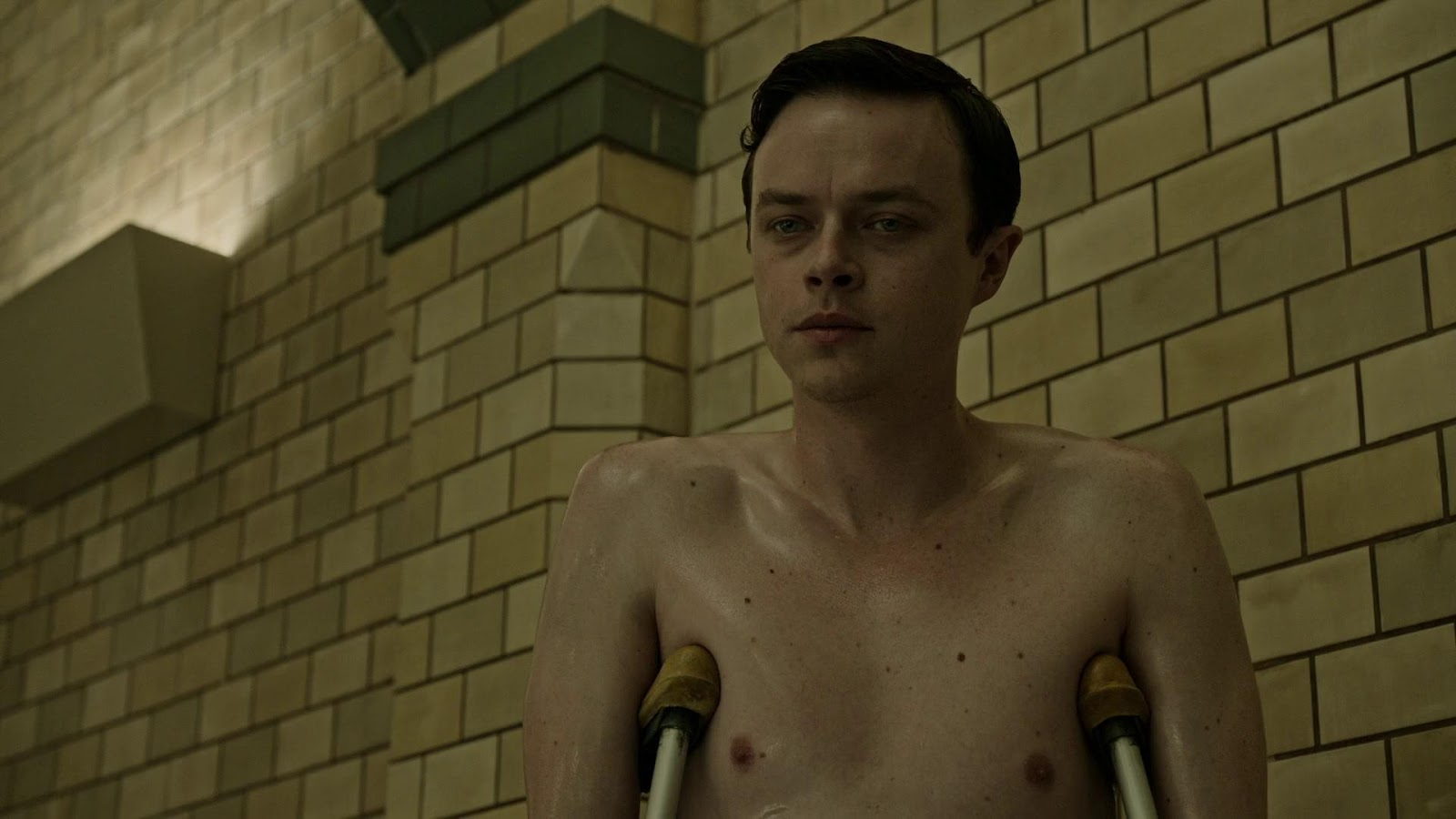 A Cure for Wellness (2016) 3
