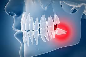 ini adalah gambaran impaksi gigi bungsu