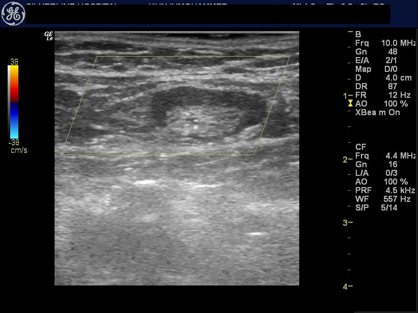 Ultrasound Imaging Normal And Enlarged Lymph Nodes