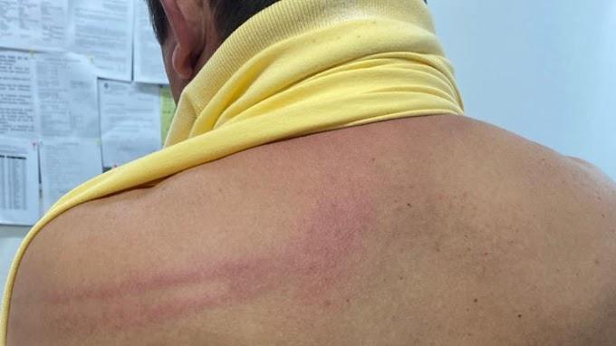 Prefeito de Palhano é agredido por policiais militares durante festa de Carnaval na cidade