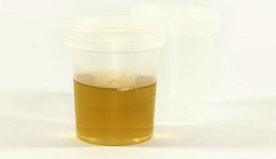 pentingnya tes urin