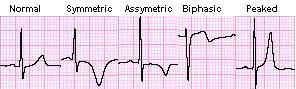 gelombang T asimetrik