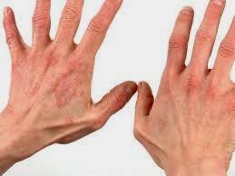 Image result for bercak merah pada kulit