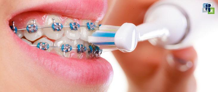 هل نحتاج لمعجون أسنان وفرشاة أسنان خاصة بالتقويم؟
