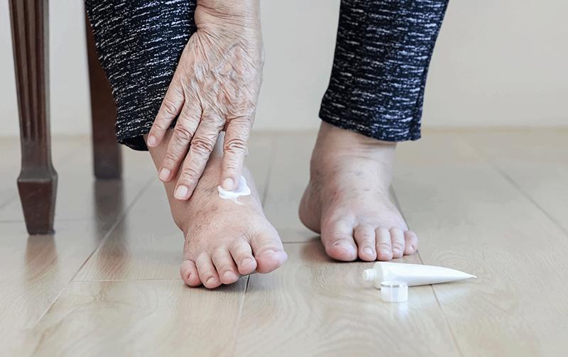 Diyabetik ayak yarası nasıl önlenir?