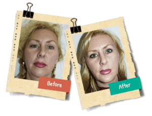 Lose face fat - how to get rid of chubby cheeks and double chin - proven  face exercises - enformy.com