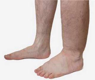 bacaklarda ödem