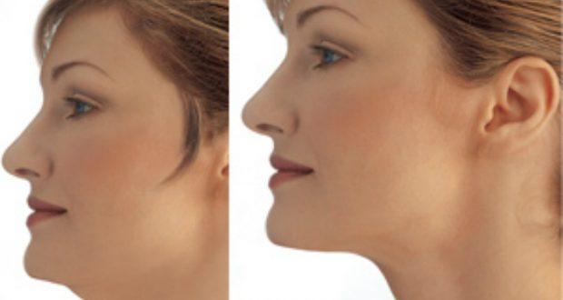 وصفة طبيعية فعالة لشد الوجه والدقن المزدوجة
