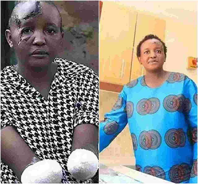 Kenyan Lady Whose Hands Were Cut Off As She Couldn't Have A Child Is Pregnant