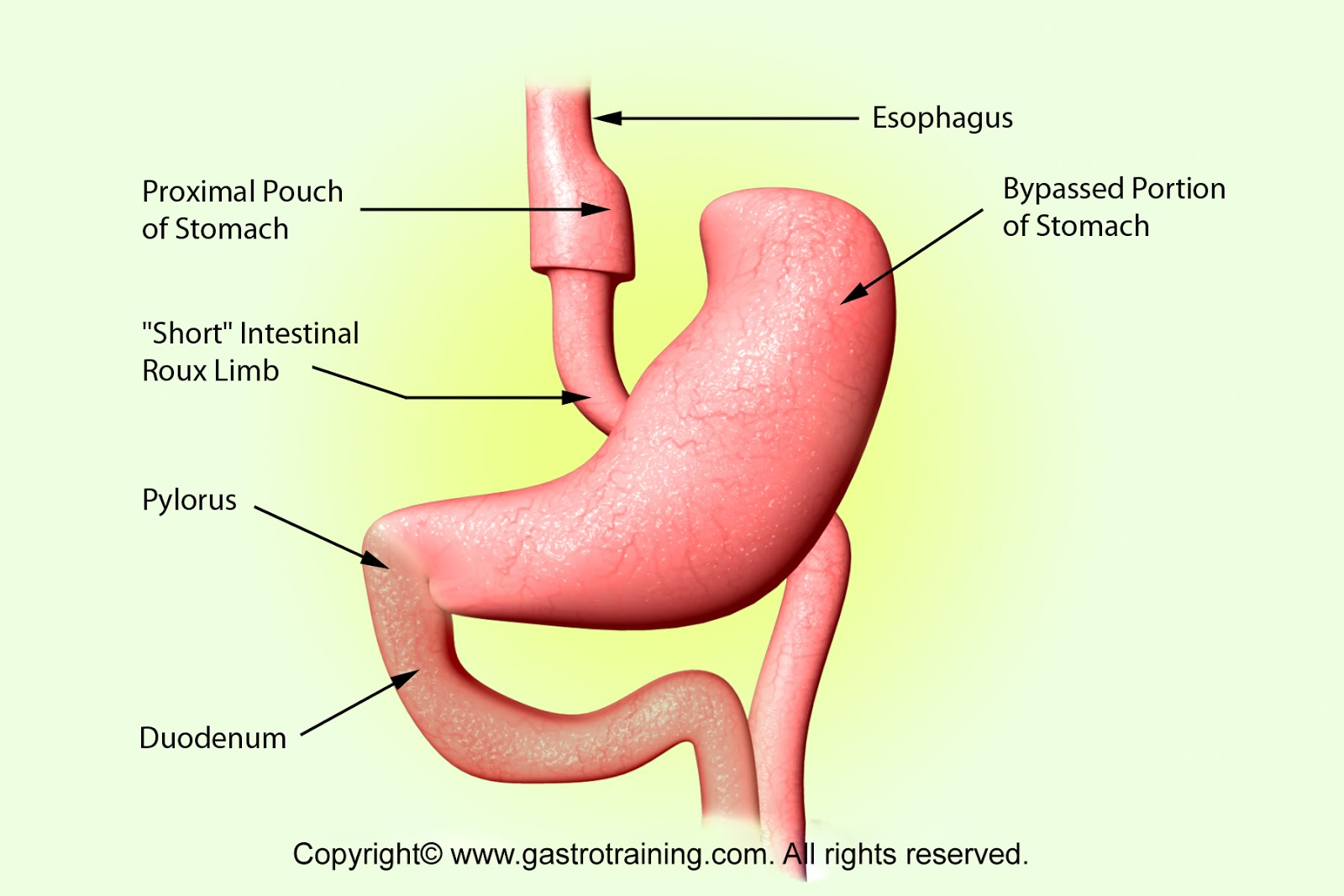 gastroparesis: pyloric stent & pyloroplasty, Human Body