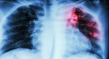 Homem com câncer de pulmão de 81 anos usou óleo canabidiol - seu tumor encolheu em até 50%