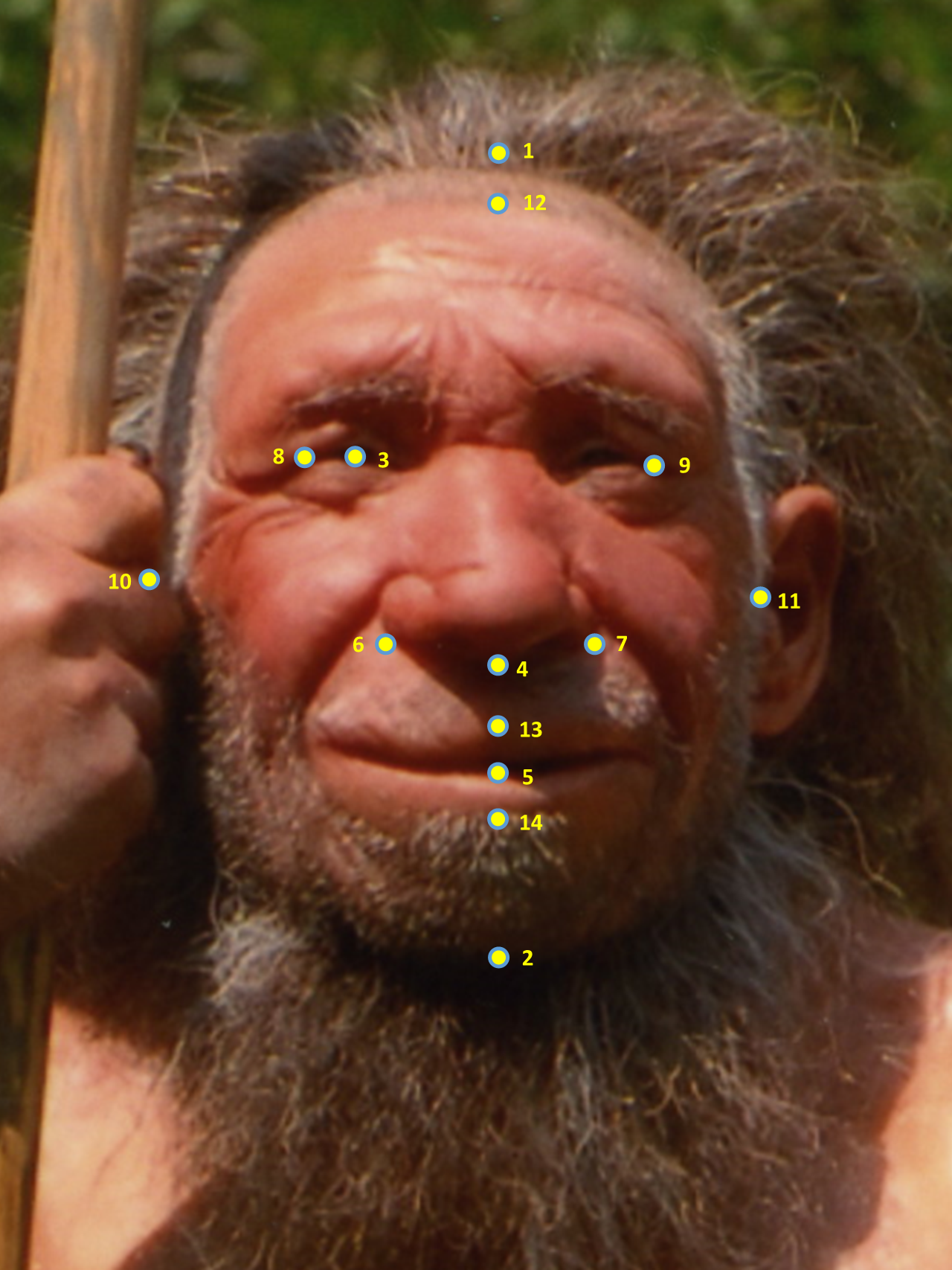 Mr. N, with facial dimension measurement points added