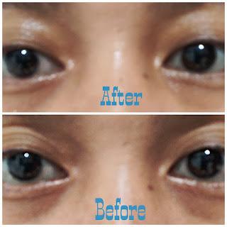 Review Eye and Facial Nourishing Cream SNP