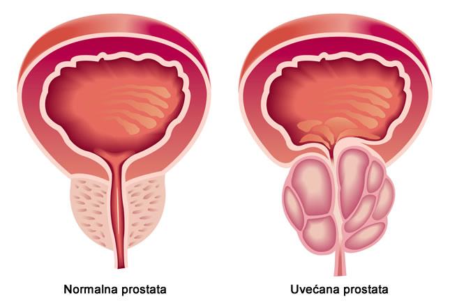prirodan lijek za prostatu