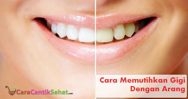 Cara Memutihkan Gigi Dengan Arang