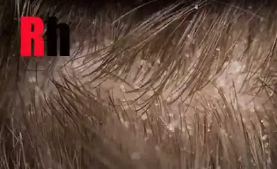 علاج قشره الشعر الدهنى