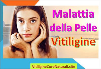 malattia-della-pelle-vitiligine-trattamento-terapia-naturale