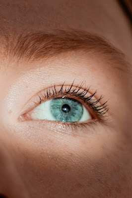 can I wear contact lenses if i have ocular rosacea
