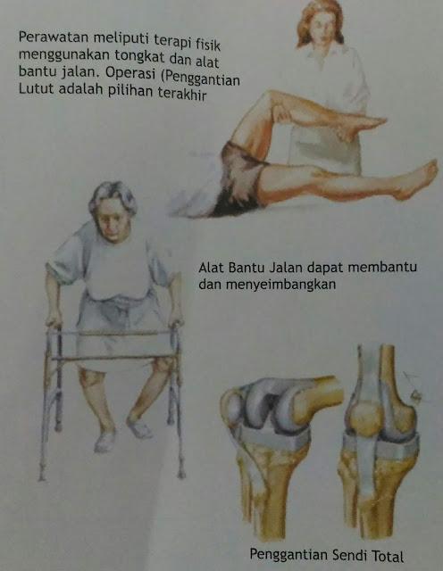 persendian sering nyeri atau muncul rasa sakit? Bisa Jadi Karena Osteoarthritis