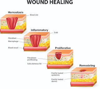 The word healing, used in a pathological context, refers to the body's replacement of destroyed tissue