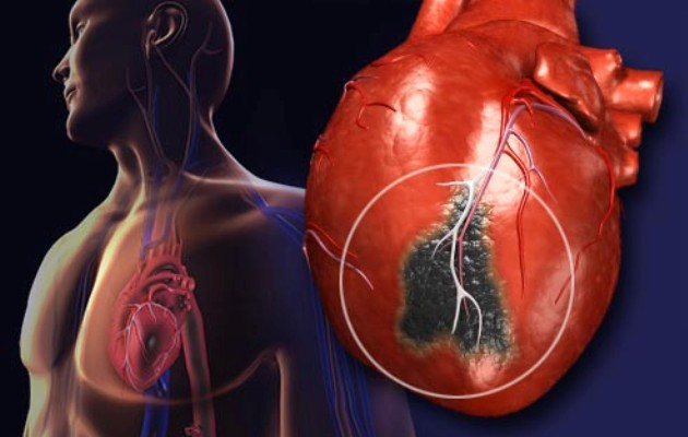 Heart Attack Fear 'May Worsen Outcome', Study Suggests